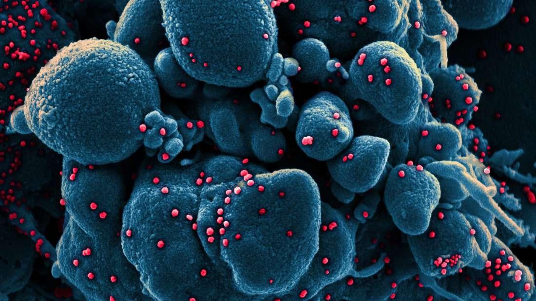 eDoctor - 📌Ảnh chụp nCoV giết chết tế bào người ❗
